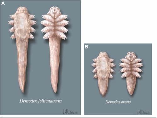 Demodex folliculorum và demodex brevis là 2 loại ký sinh trùng demodex thường gặp.