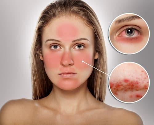 Cách điều trị viêm da demodex triệt để nhất là chữa từ chính nguyên nhân gây nên demodex