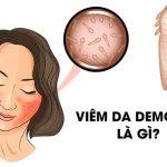 Demodex là gì? Nguyên nhân, dấu hiệu và cách điều trị hiệu quả