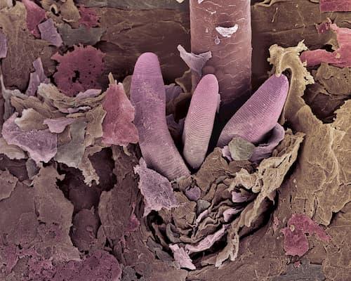 Ký sinh trùng demodex sống và sinh sản trong tuyến bã nhờn