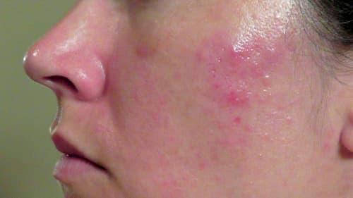 Mẩn đỏ và cảm giác ngứa châm chích là dấu hiệu cụ thể nhất của demodex