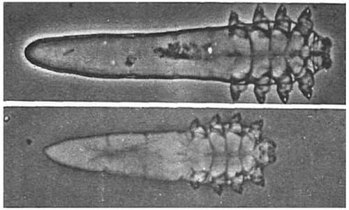Hình ảnh ký sinh trùng demodex dưới kính hiển vi