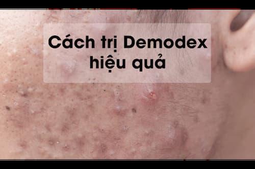 """Khi bị nhiễm Demodex thì cơ hội cho mụn mủ, mụn bọc, mụn trứng cá,... làm """"ổ"""""""