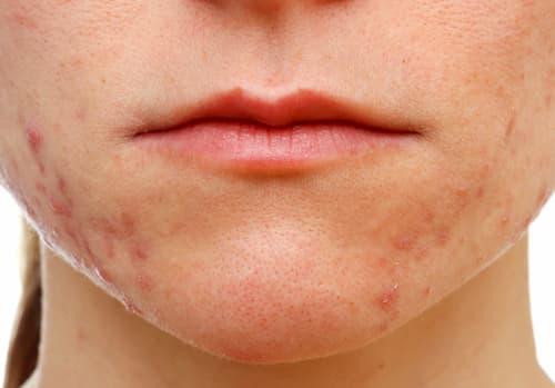 Dấu hiệu da bị nhiễm demodex