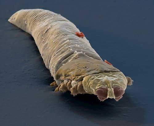 Hình ảnh ký sinh trùng demodex qua kính hiển vi