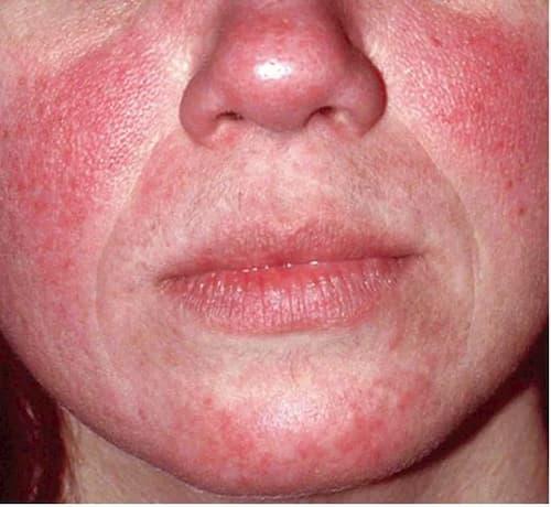 Những biểu hiện của da bị nhiễm Demodex
