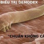 Điều trị Demodex, viêm da Demodex ở đâu an toàn và hiệu quả?