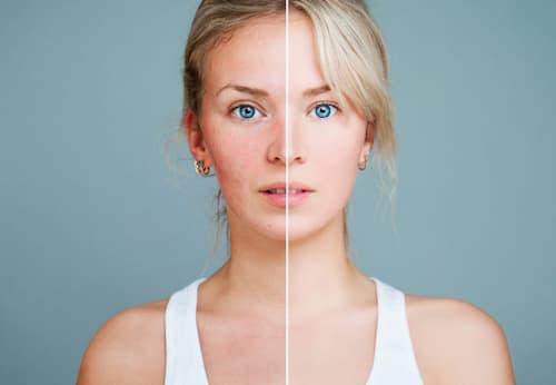 Demodex trên da có thể gây ra bệnh hồng ban