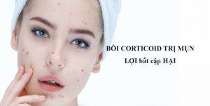 boi-corticoid-tri-mun