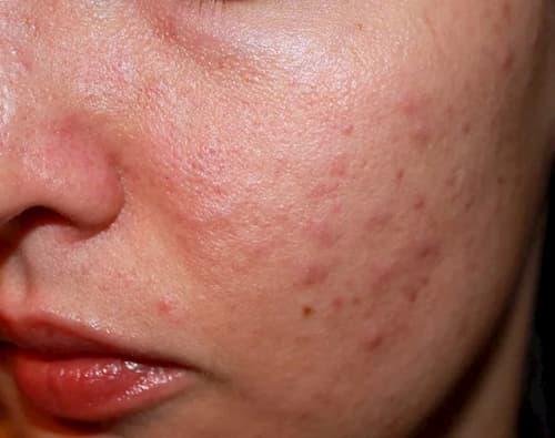 Dấu hiệu dễ nhận thấy nhất của Demodex là da bị ửng đỏ thành từng mảng