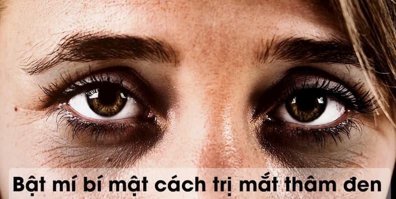 Cách trị mắt thâm đen an toàn, hiệu quả không phải ai cũng biết