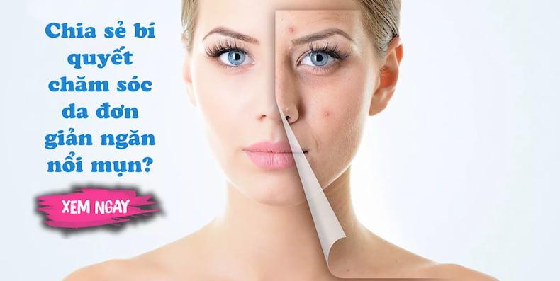 Chia sẻ bí quyết chăm sóc da đơn giản để không nổi mụn?