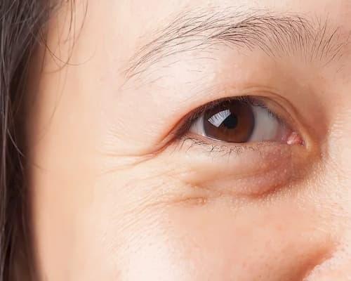 Bọng mắt ngày nay không chỉ phổ biến ở người trung niên mà còn phổ biến ở người trẻ