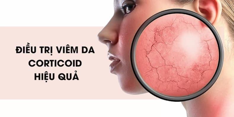 Corticoid là gì? Chia sẻ bí quyết điều trị viêm da corticoid hiệu quả