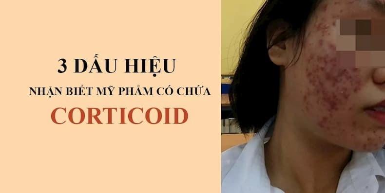 """3 dấu hiệu nhận biết corticoid trong kem trộn """"chuẩn không cần chỉnh"""""""