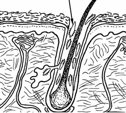 Demodex đang đào hang làm ổ để đẻ trứng trong nang lông/tóc