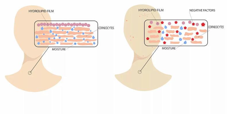 Cách khôi phục lớp màng Hydrolipid khi bị tổn thương