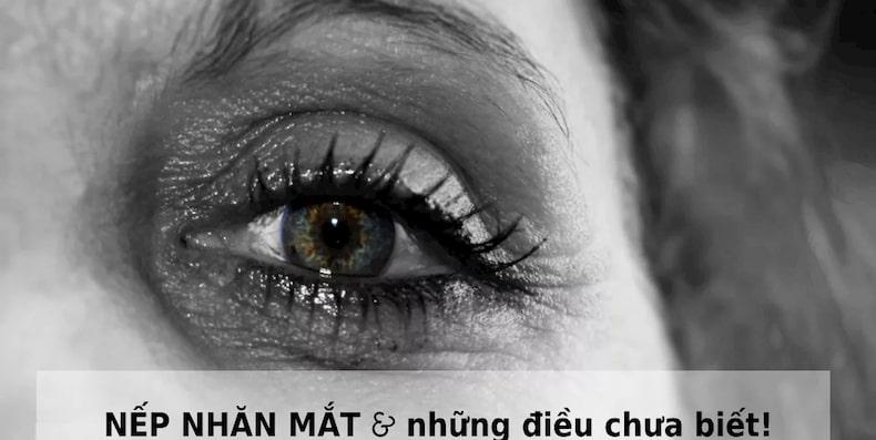 Tổng hợp thông tin về nếp nhăn mắt bạn không thể bỏ lỡ!
