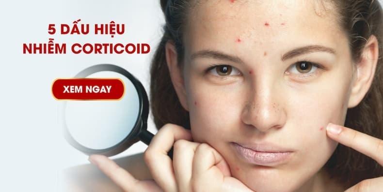 5 dấu hiệu cảnh báo da bạn đã nhiễm Corticoid