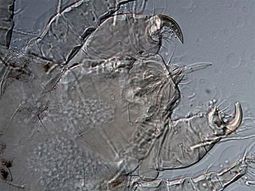 Ký sinh trùng Demodex có miệng sắc nhọn để đâm sâu vào da lấy thức ăn