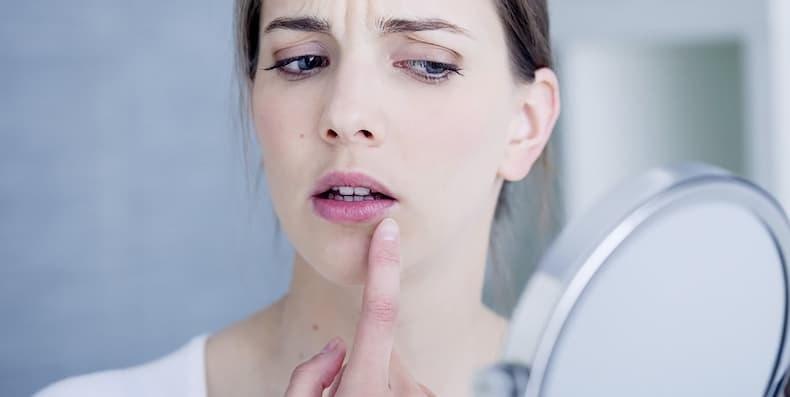 Top 3 thực phẩm bạn không thể bỏ qua khi muốn trị vết thâm mụn