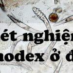 Nên xét nghiệm Demodex ở đâu chính xác an toàn?