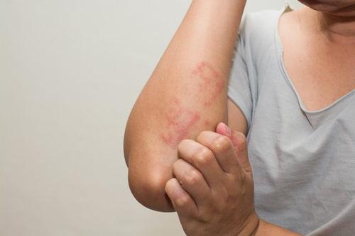 Tuyệt đối không được gãi hoặc tác động mạnh vào vùng da bị viêm chân lông lúc này