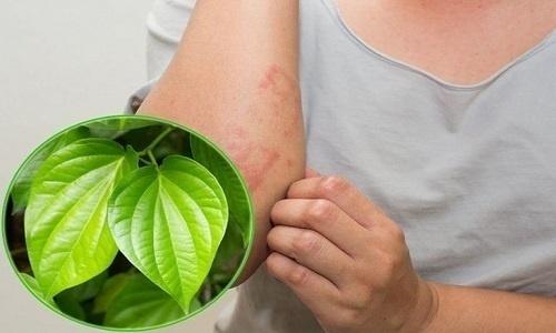 """Điều trị viêm lỗ chân lông bằng phương pháp tự nhiên có """"ổn"""" không?"""