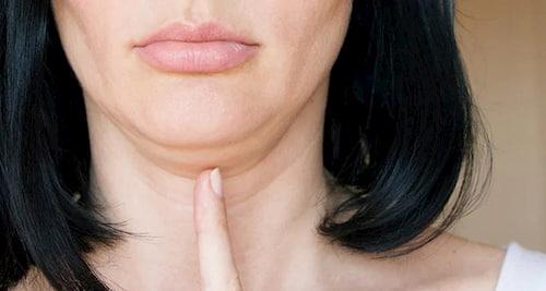 Nọng cằm - kết quả của ứ đọng dịch trong cơ thể
