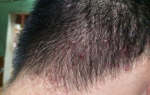 Viêm nang lông chân tóc làm cho người bệnh mất tự tin