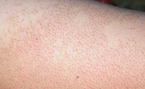 Mề đay mẩn ngứa xuất hiện ở các nang lông