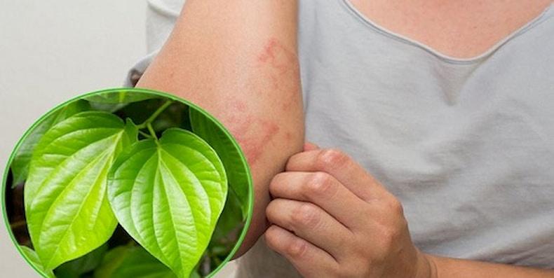 Thực hư cách chữa viêm chân lông bằng lá trầu không?