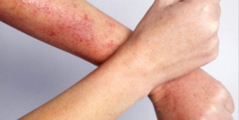 Bật mí 3 bí quyết làm gì để hết viêm lỗ chân lông