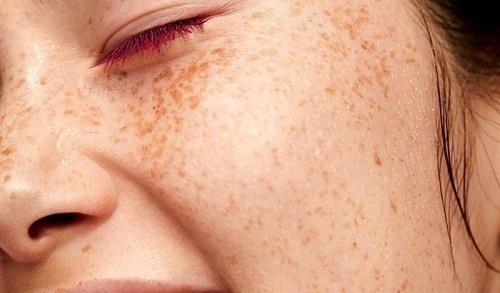 Retinoids được biết đến với khả năng làm giảm sắc tố melanin