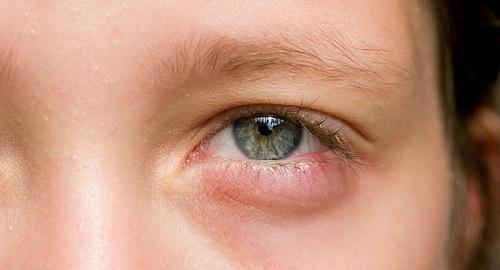 Triệu chứng sưng bọng mắt