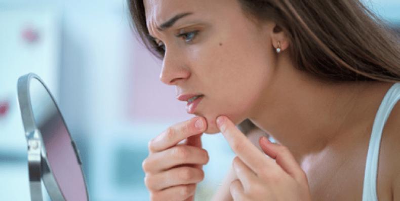 Mụn nang – Kẻ thù nguy hại đối với làn da!
