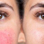Bệnh đỏ mặt: triệu chứng và cách điều trị