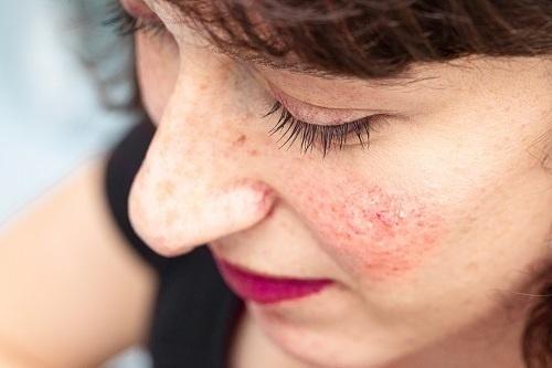 Da dễ ửng đỏ là biểu hiện đặc trưng của bệnh đỏ mặt