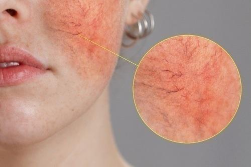 Giai đoạn 2 - Da ửng đỏ liên tục, lộ mao mạch