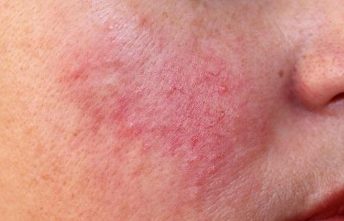Chứng đỏ mặt hay còn gọi là bệnh rosacea