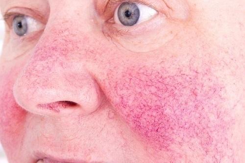 Giãn mao mạch thường xuất hiện ở giai đoạn 4 của bệnh đỏ da mặt