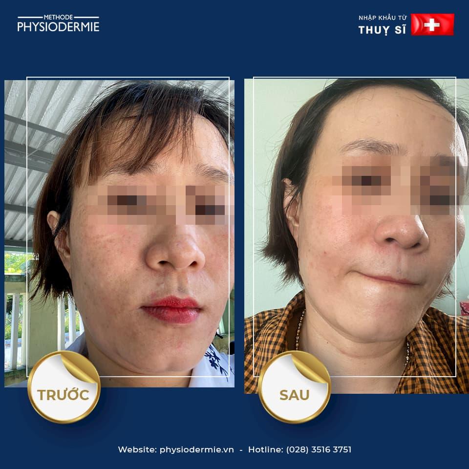 Chị T (40T) – Điều trị nám, xạm da chỉ trong 2 tháng sử dụng sản phẩm