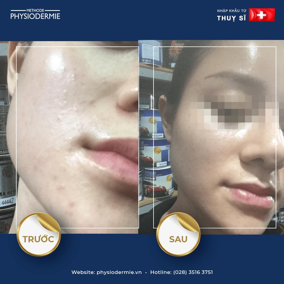 Chị Q – Điều trị mụn đầu trắng, mụn ẩn dưới da chỉ trong 1 tháng