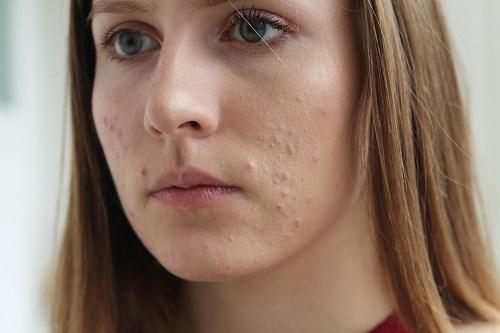 Mụn ồ ạt xuất hiện báo hiệu các bệnh về da