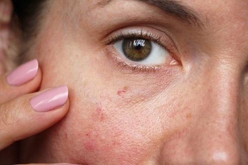 Mặt bị dị ứng đỏ ngứa chủ yếu xuất hiện nhiều nhất ở những làn da nhạy cảm