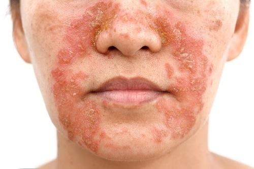 Các tảng da sần sùi do chàm Eczema