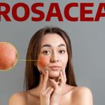 Bệnh đỏ da mặt là bệnh gì?