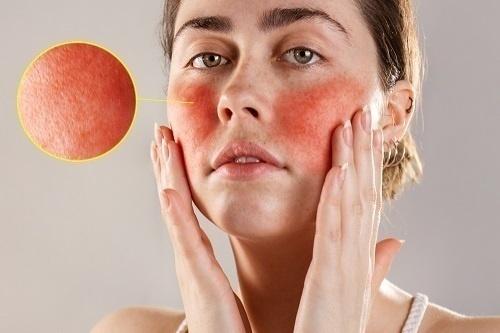 Bệnh đỏ da mặt thường xuất hiện ở lứa tuổi 30 đến 50, nữ nhiều hơn ở nam