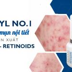 Actinyl No.1 đánh bay mụn nội tiết với dẫn xuất vitamin A – Retinoids