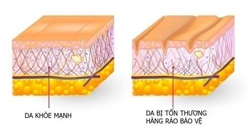 Hàng rào bảo vệ da chính là lớp màng ngoài cùng của biểu bì